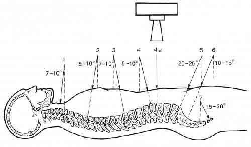 Схема оптимальных углов