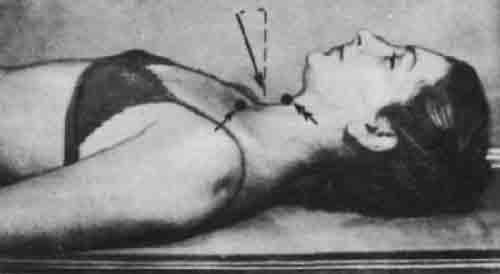 Обезболивающие: уколы от боли в спине, суставах, инъекции при