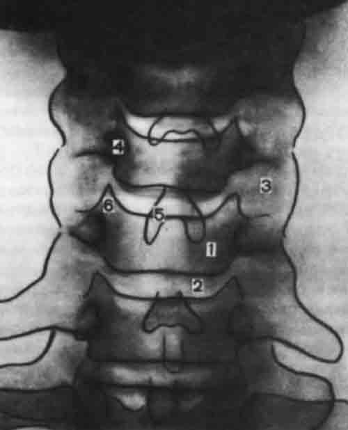 Шейный лордоз выпрямлен кифотическая деформация