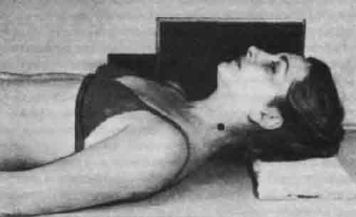 Компресс при остеохондрозе поясничного отдела