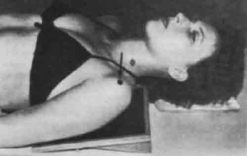 Укладка для рентгенографии плечевого сустава в прямой задней проекции.