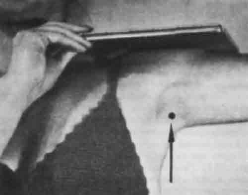 Укладка для рентгенографии плечевого сустава в аксиальной проекции в...