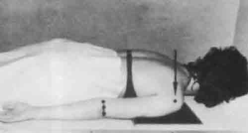 Укладка для рентгенографии плечевого сустава в боковой проекции.