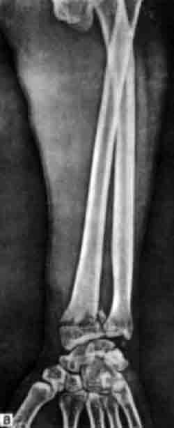 рентгеновский снимок лошади скакательный сустав