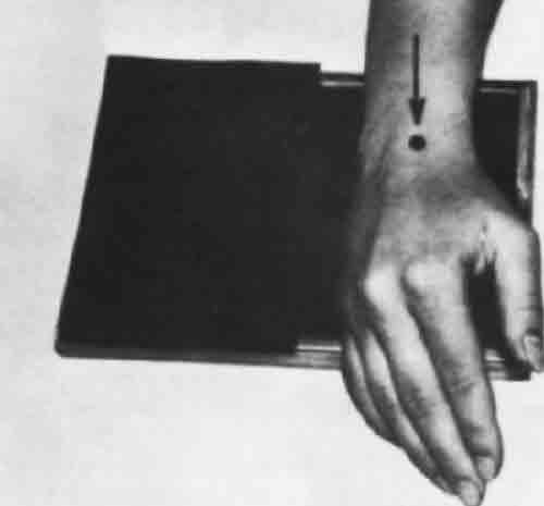 рентген кисти с лучезапястным суставом
