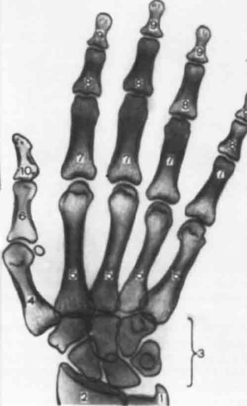 ...4 - I пястная кость; 5 - II - V пястные кости; 6 - проксимальная...