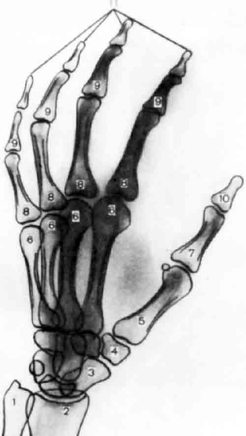 1 - локтевая кость; 2 - лучевая кость; 3 - ладьевидная кость; 4...