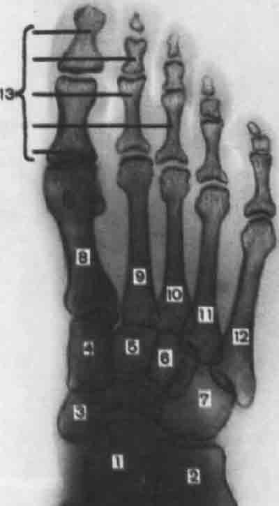 Кости плюсны проекционно наслаиваются друг на друга.  Из всех костей наиболее...  Схема с рентгенограммы стопы в...