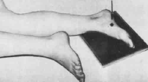 Болит косточка на ноге около большого пальца - что делать?
