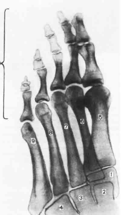 Схема с рентгенограммы стопы в косой проекции.  1 - медиальная клиновидная кость; 2 - промежуточная клиновидная кость...