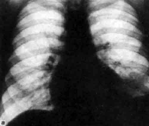 Рентгенограммы легких в прямой проекции, выполненные в...