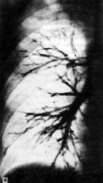 В связи с тем, что строение бронхиального дерева довольно стереотипно, идентификация их на бронхограммах...