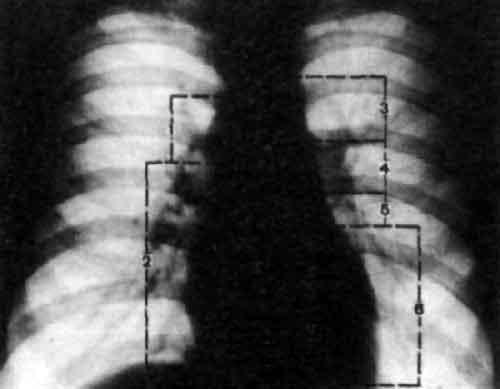 Рентгенограмма сердца и крупных сосудов в прямой...