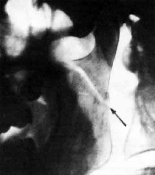 венечный отросток лучевой кости, перелом с вывихом локтевого сустава