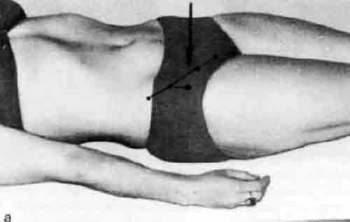 Тазобедренный сустав в прямой проекции остеосинтез плечелопаточного сустава у кошки