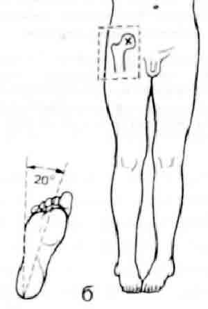 Рентген проекции тазобедренного сустава какая связь между болезнями печени и суставом