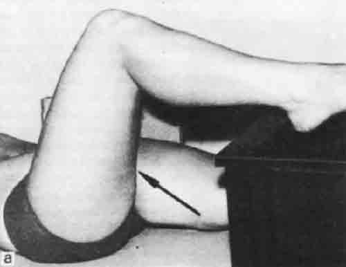 Укладка тазобедренного сустава бурсит локтевого сустава что делать