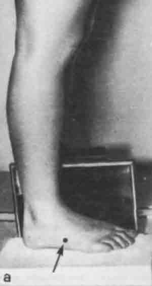 Укладка голеностопного сустава в боковой проекции описание современные методы лечения суставов