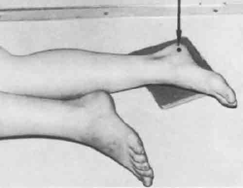 укладка пяточная кость фото можно
