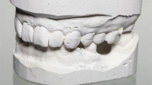 Ортодентическое лечение в стоматологии
