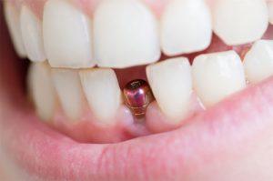 Подготовка к имплантации зубов пациента