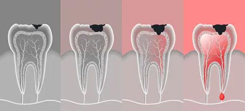 Степени разрушения зуба и методы лечения