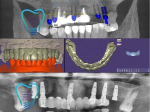Имплантация зубов: поэтапная и одномоментная