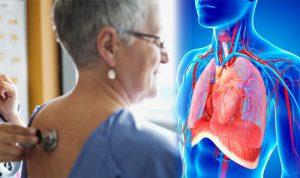 Достижения немецких врачей в области лечения рака легких