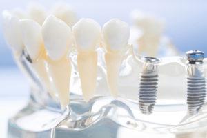 Где лучше провести имплантацию зубов в Киеве