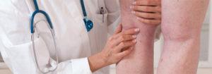 Чем поможет врач флеболог?