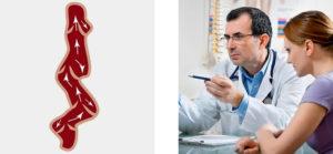 Флебология: специфика и особенности